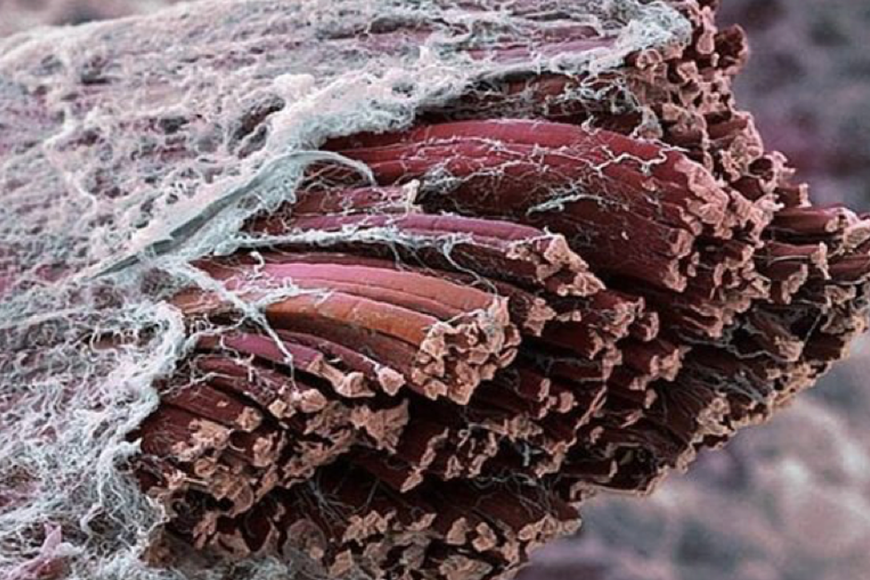 deep tissue 1